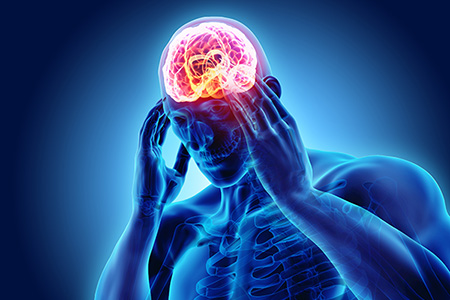 Episodic Migraine: Reasons to Not Ignore Them